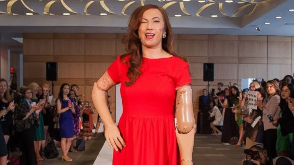 Karen Crespo made headlines in 2014 as the first-ever quadruple amputee to walk at New York Fashion Week.